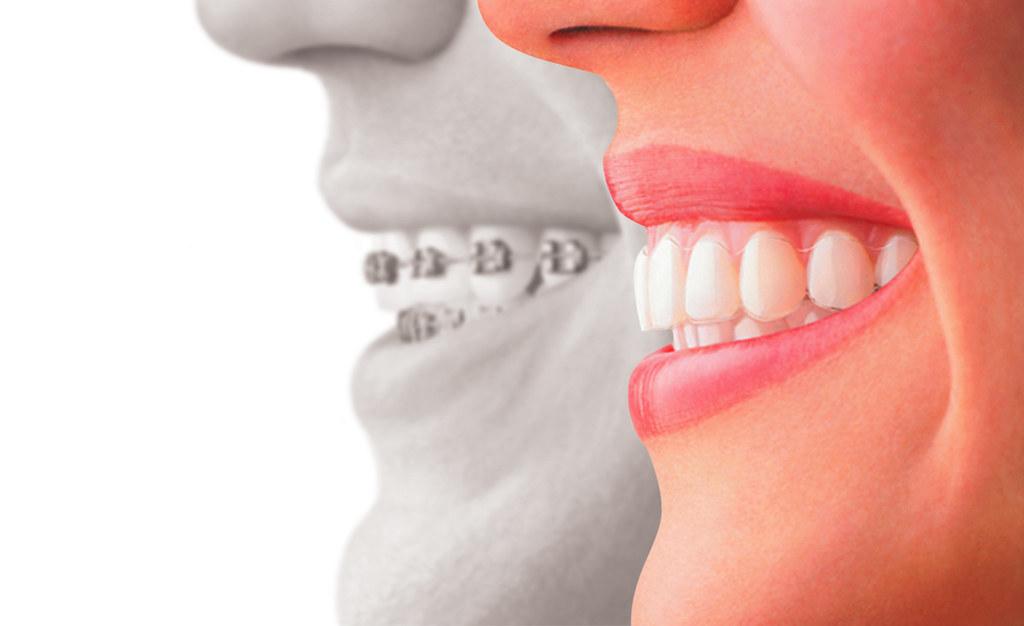 duele la ortodoncia Invisalign